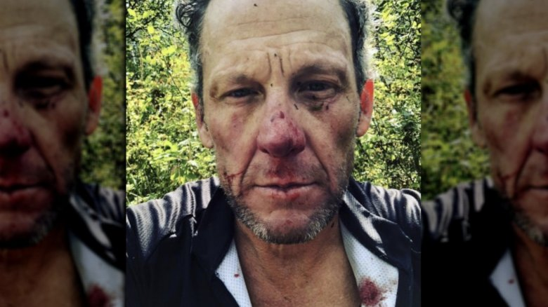 Lance Armstrong bloodied and battered after fall while cycling Colorado trail