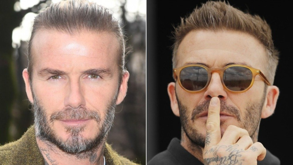 Celebs Who Don T Want You To Know They Re Going Bald