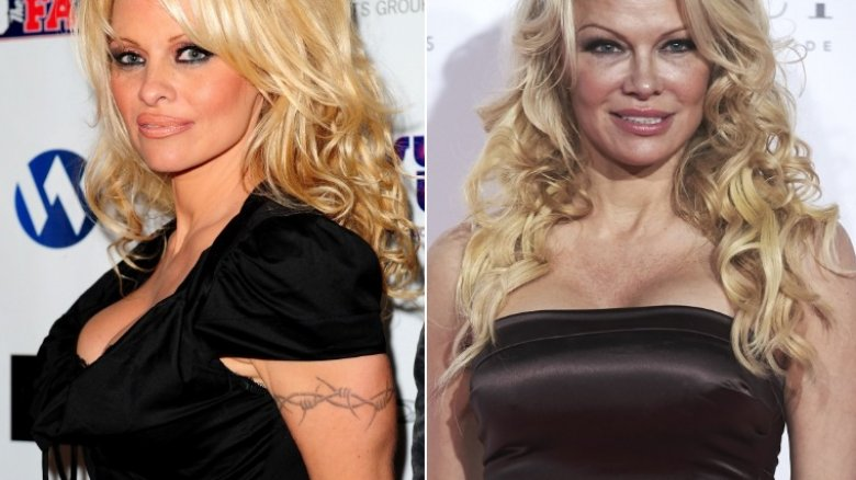 Celebs who got their embarrassing tattoos removed