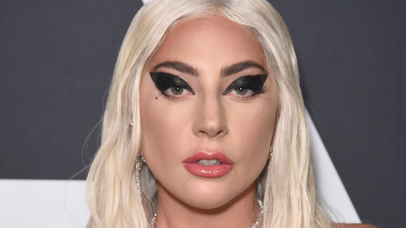 Lady Gaga's Dog Walker Opens Up About His Current Condition.jpg