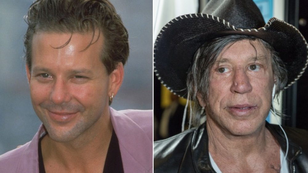 The Truth About Mickey Rourke's Plastic Surgery
