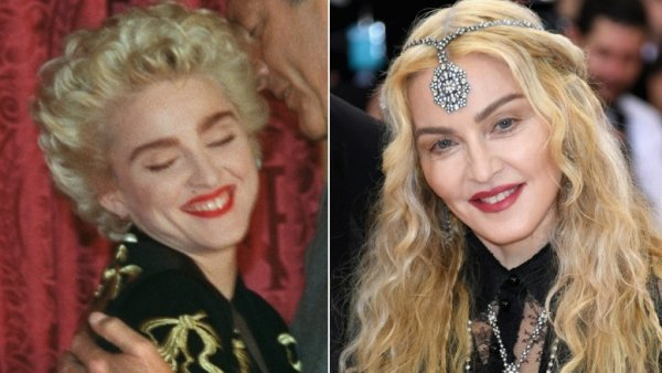 Pop Star Plastic Surgery: Before and After Photos